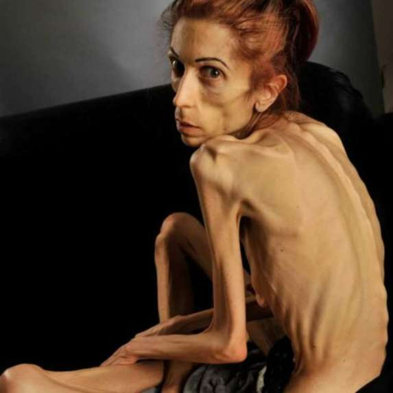 anorexiabbc
